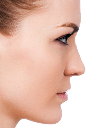 Nose Surgery - Rhinoplasty in Jacksonville by Lewis J. Obi, M.D.