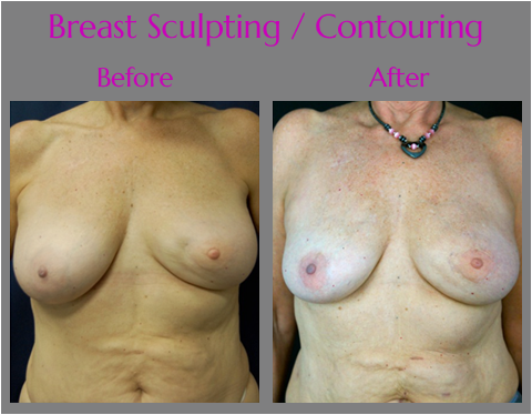 Laser Breast Reconstruction, contouring post mastectomy and limpectomy by Dr. Lewis J. Obi