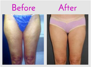 Thigh Lipo with SlimLipo (LifeSculpt)