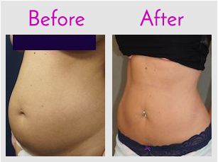 Tummy Lipo with SlimLipo (LifeSculpt)
