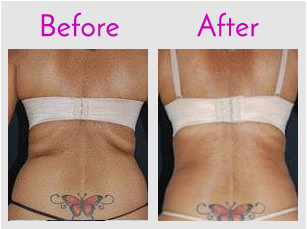 Waist Lipo with SlimLipo (LifeSculpt)