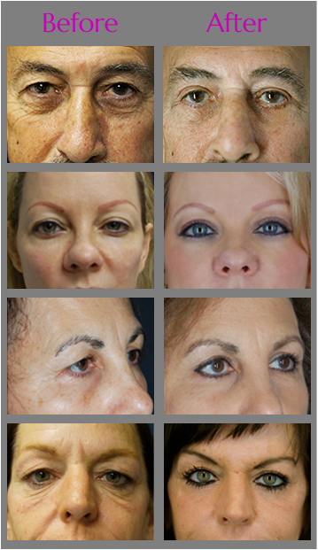 Browlift and Forehead Lift in Jacksonville at Obi Plastic Surgery