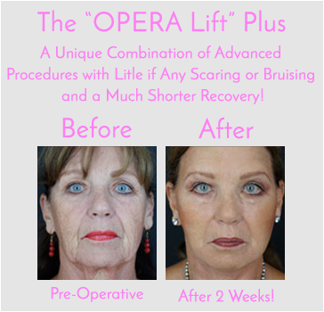 The Exclusive Opera Lift Facelift Only at Obi Plastic Surgery