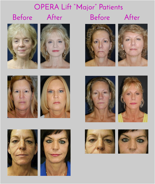 OPERA Lift Face Lift Exclusively at Obi Plastic Surgery in Jacksonville, Florida