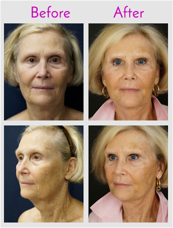 PRP enhanced Non-Invasive Face Lift by Lewis J. Obi in Jacksonville, Florida