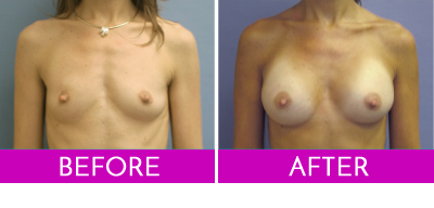 Gel Breast Implant before and after photo