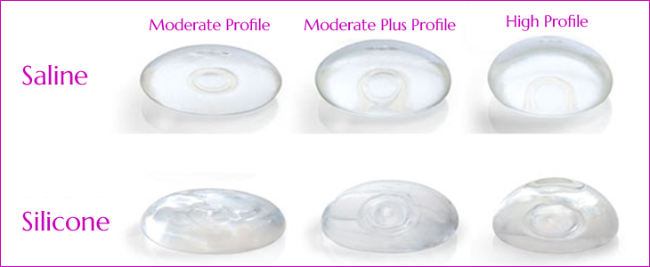 Saline Breast Augmentation at Obi Plastic Surgery in Jacksonville