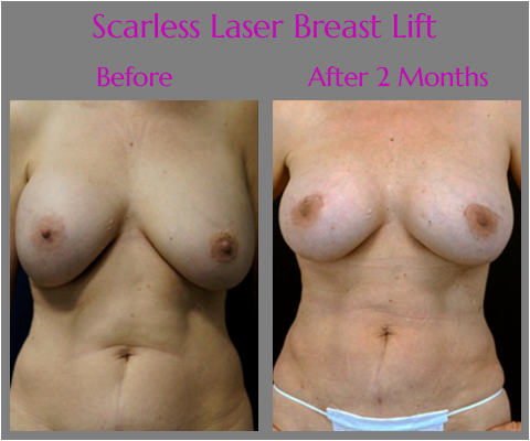 Scarless Laser Breast Lift in Jacksonville at Obi Plastic Surgery