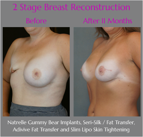 Scarless Laser Breast Reconstruction at Obi Plastic Surgery in Jacksonville, Florida