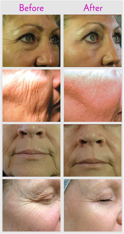 Facial Wrinkle Reduction at Obi Plastic Surgery in Jacksonville