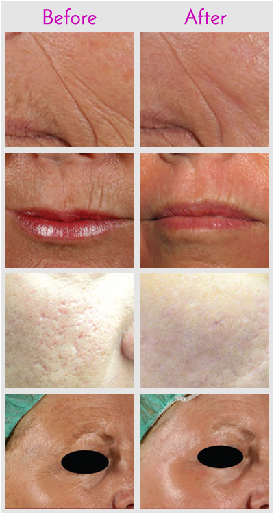 Laser Skin Resurfacing in Jacksonville at Obi Plastic Surgery