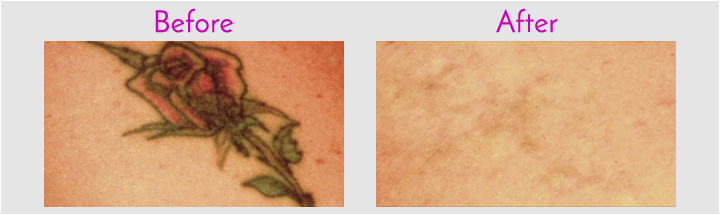 Laser Tattoo Removal at Obi Plastic Surgery in Jacksonville