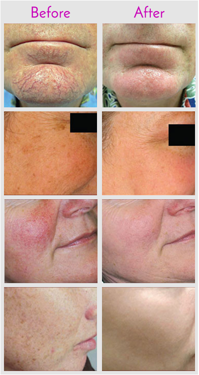 IPL  Laser Skin Rejuvenation Before and After Photos