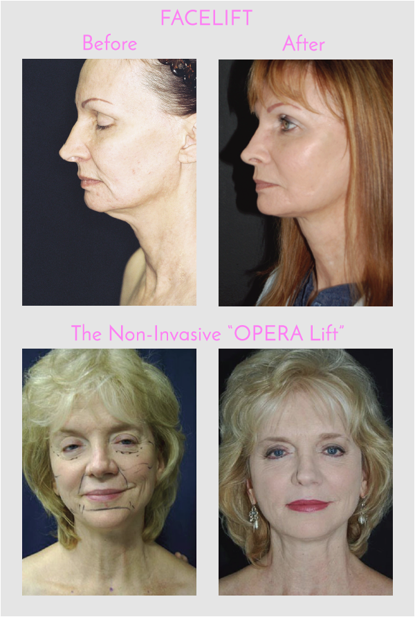 Facelift and Opera Lift Before and After Photos