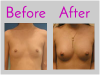 Fat Transfer Breast Reconstruction in Jacksonville by Lewis J. Obi