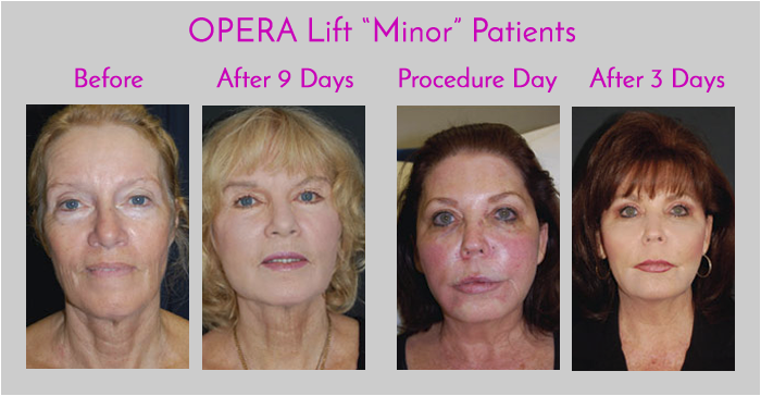 OPERA Lift Facelift Minor Exclusively at Obi Plastic Surgery in Jacksonville, Florida