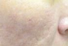acne-scar-reduction-1-after