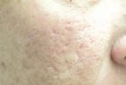 acne-scar-reduction-1-before