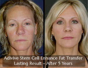 Adivive Stem Cell Enriched Fate Transfer in Jacksonville