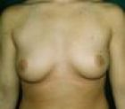 breast-aug-3-before