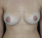 breast-lift-1-after