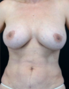 breast-lift-4-after