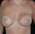 breast-lift-6-before