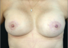 breast-lift-8-after