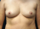 breast-lift-8-before