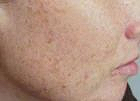 facial-rejuvenation-1-after