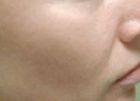 facial-rejuvenation-1a-after
