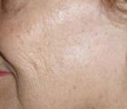 facial-rejuvenation-2-after