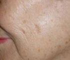 facial-rejuvenation-2-before