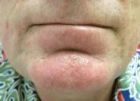 facial-rejuvenation-5-after