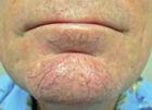 facial-rejuvenation-5-before