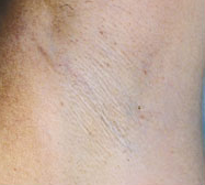 laser-hair-removal-2a