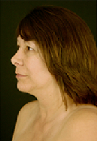 necklift-2-before
