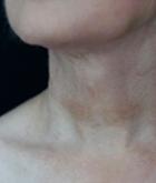 necklift-3-after