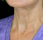 necklift-5-after