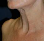 necklift-5-before