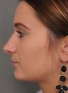 rhinoplasty-2-after