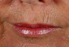 skin-resurfacing-2-before