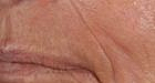 skin-resurfacing-3-after