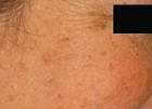 sun-damage-treatment-4-before