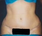 tummy-tuck-3-after