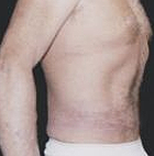 tummy-tuck-5-after
