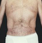 tummy-tuck-6-after