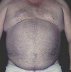 tummy-tuck-6-before