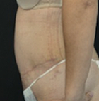 tummy-tuck-7-after