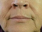 wrinkle-reduction-3-before